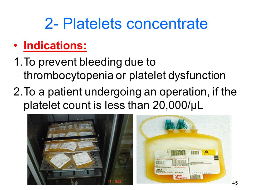 44 2- Platelets Concentrate (PC) How to prepare PC.