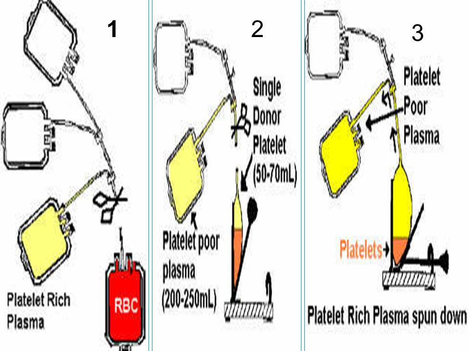 45 2- Platelets concentrate Indications: 1.To prevent bleeding due to thrombocytopenia or platelet dysfunction 2.To a patient undergoing an operation, if the platelet count is less than 20,000/µL