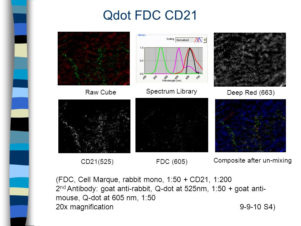 Qdot FDC CD21 Deep Red (663) CD21(525) Composite after un-mixing Raw Cube FDC (605) (FDC, Cell Marque, rabbit mono, 1:50 + CD21, 1:200 2 nd Antibody: goat anti-rabbit, Q-dot at 525nm, 1:50 + goat anti- mouse, Q-dot at 605 nm, 1:50 20x magnification 9-9-10 S4) Spectrum Library