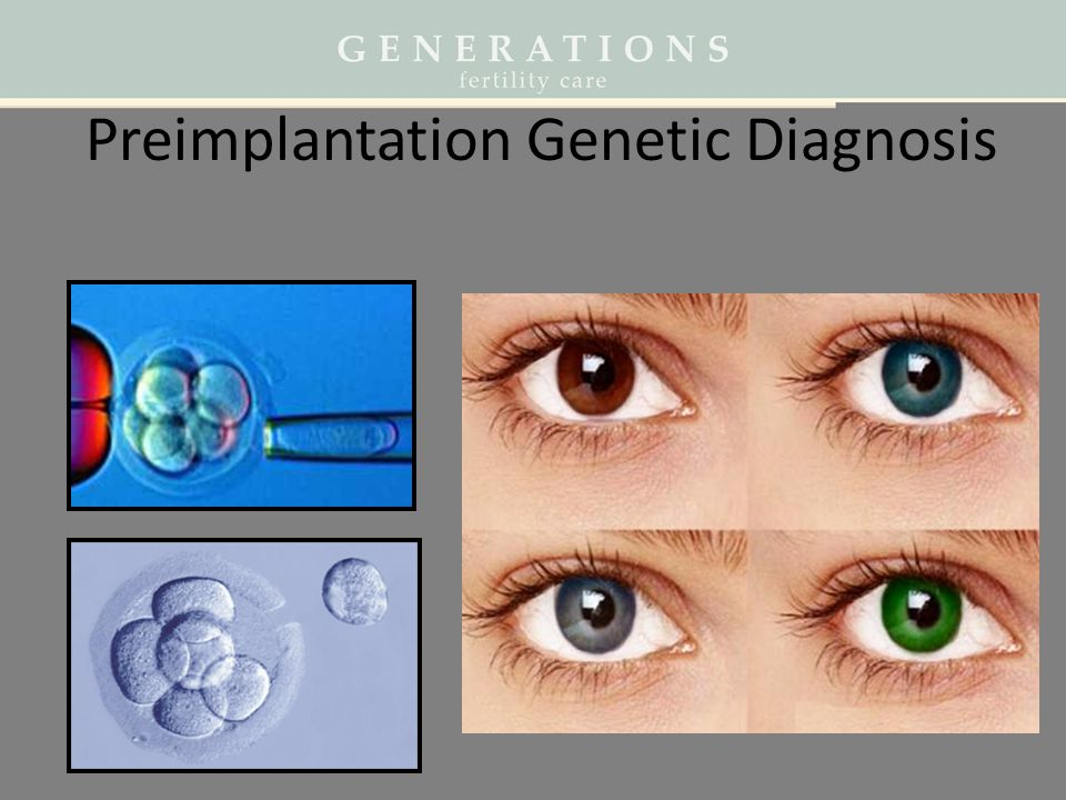 Preimplantation Genetic Diagnosis Recurrent Miscarriage Unsuccessful IVF Cycles Unexplained Infertility Advanced Maternal Age Male Factor Infertility