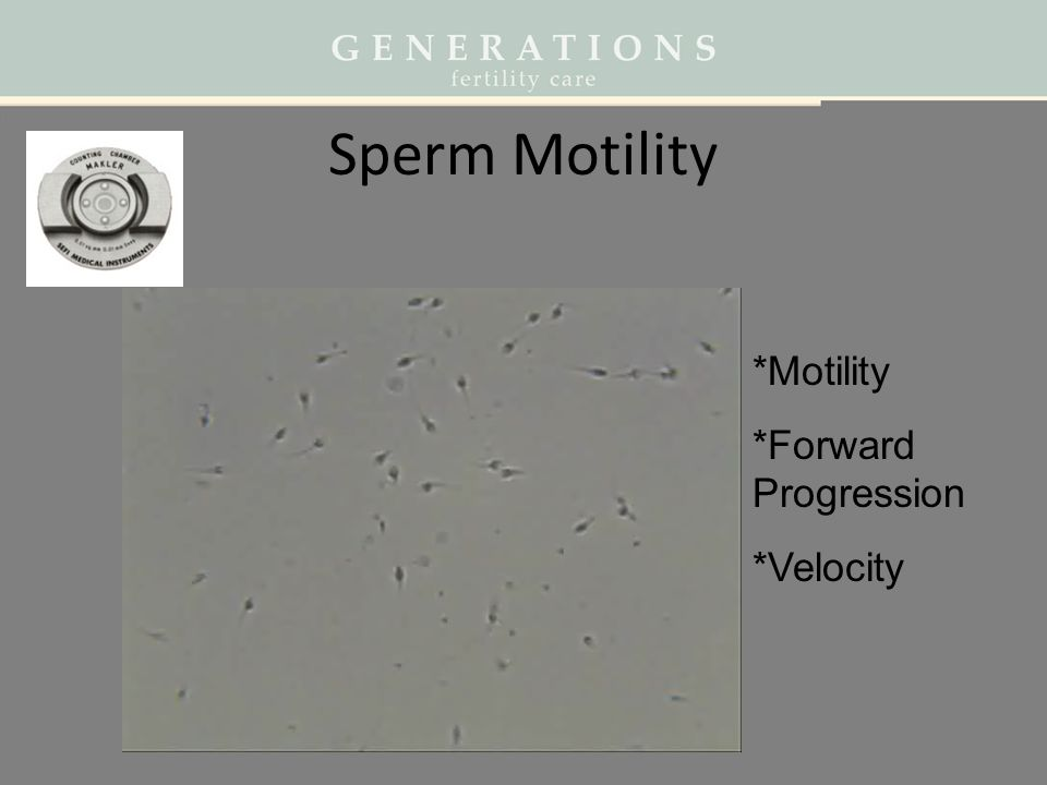 Sperm Motility *Motility *Forward Progression *Velocity