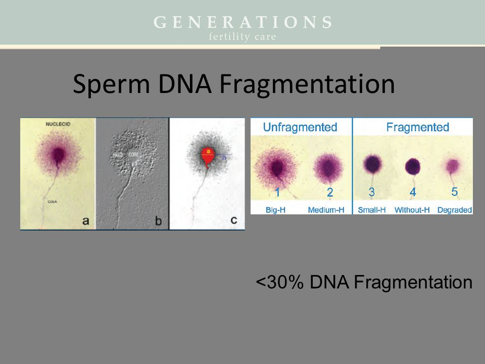 Sperm DNA Fragmentation <30% DNA Fragmentation