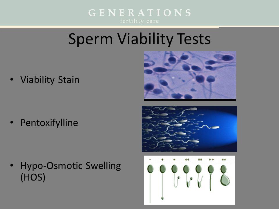 Sperm Viability Tests Viability Stain Pentoxifylline Hypo-Osmotic Swelling (HOS)