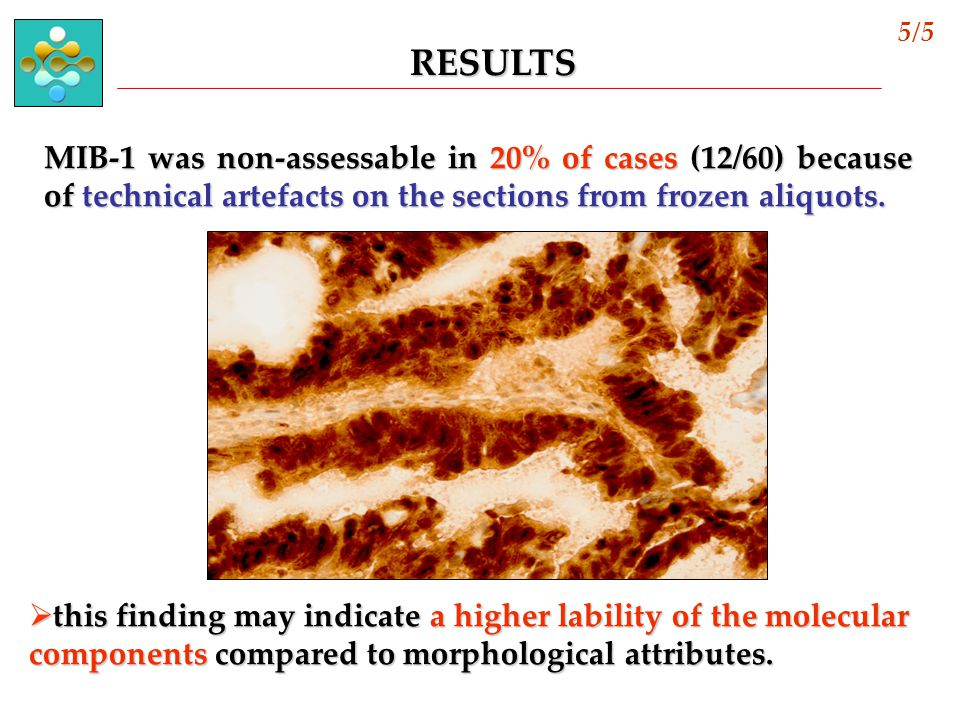 MIB-1 was non-assessable in 20% of cases (12/60) because of technical artefacts on the sections from frozen aliquots.