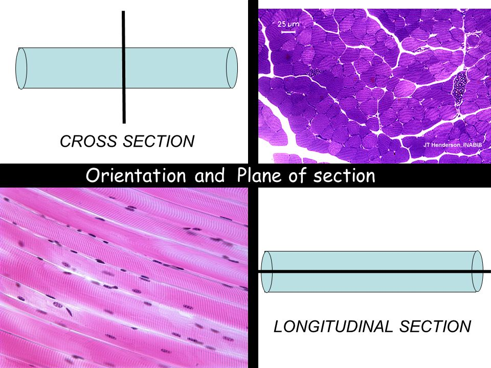 CROSS SECTION LONGITUDINAL SECTION