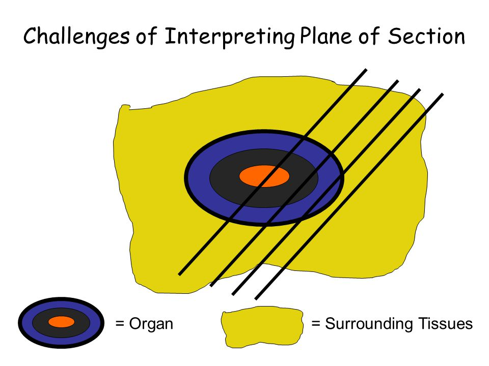 Challenges of Interpreting Plane of Section = Organ= Surrounding Tissues