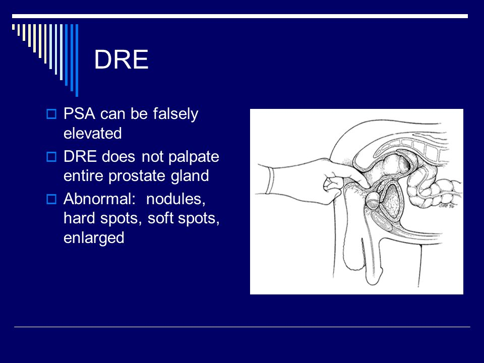 DRE  PSA can be falsely elevated  DRE does not palpate entire prostate gland  Abnormal: nodules, hard spots, soft spots, enlarged