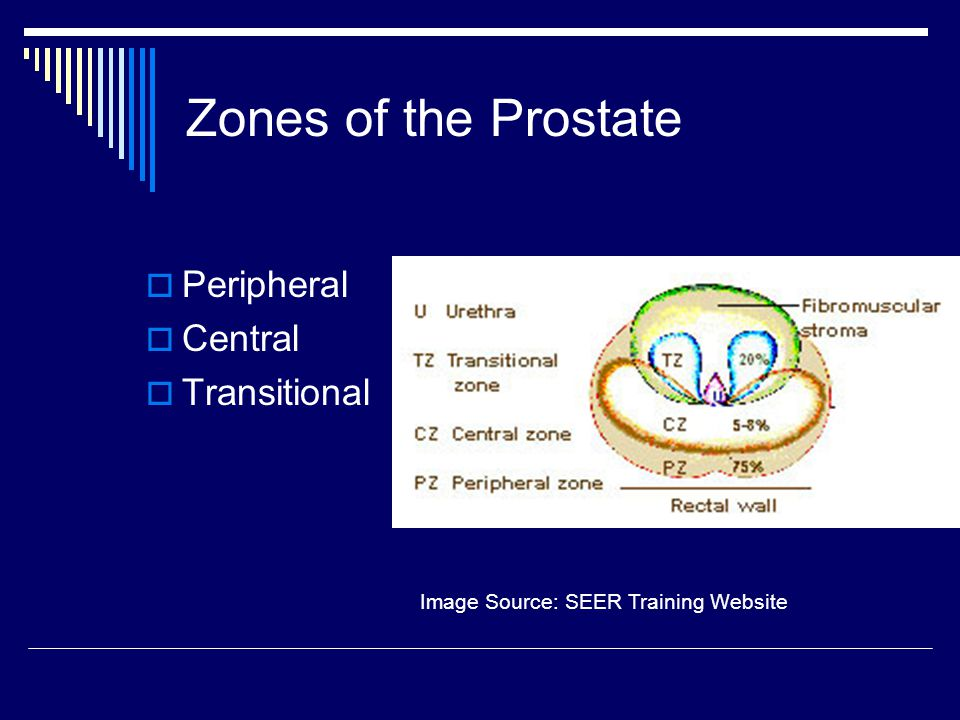 Zones of the Prostate  Peripheral  Central  Transitional Image Source: SEER Training Website