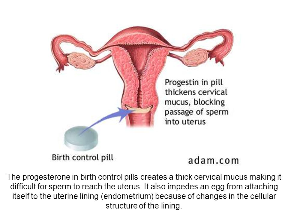 The progesterone in birth control pills creates a thick cervical mucus making it difficult for sperm to reach the uterus. It also impedes an egg from