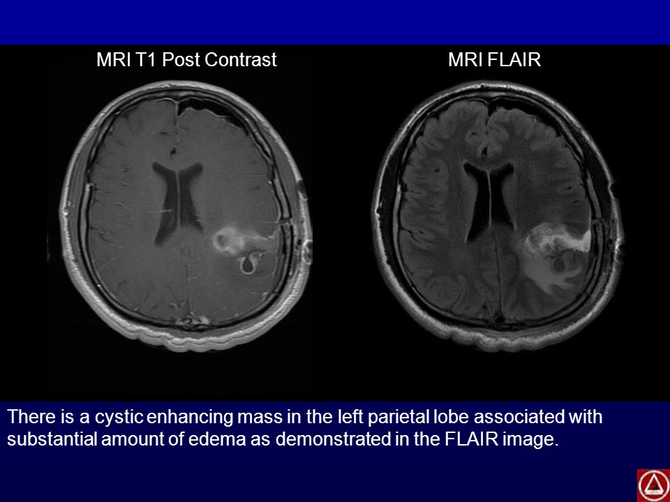 There is a cystic enhancing mass in the left parietal lobe associated with substantial amount of edema as demonstrated in the FLAIR image. MRI T1 Post