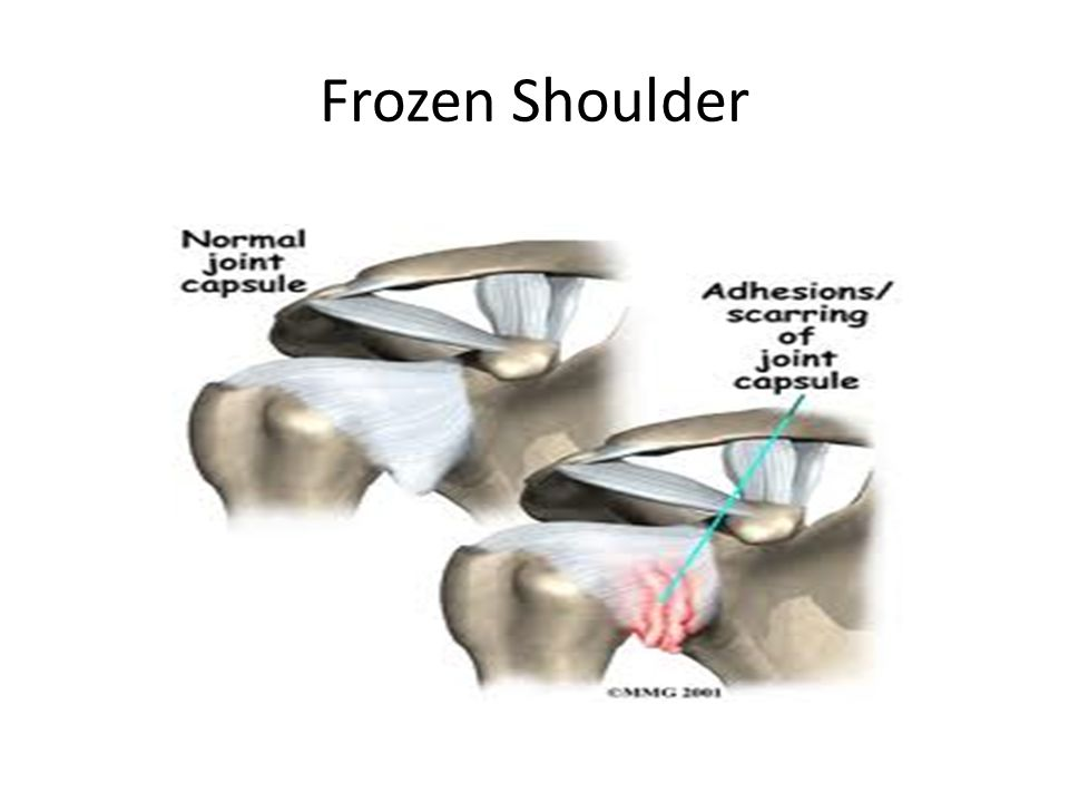 Secondary frozen shoulder Trauma R.Cuff tear Post –operatively Diabetes Cerebral haemorrhage Thyroid Autoimmune disease Cervical spine pathology Hormonal changes Prolonged immobilisation Algodystrophic