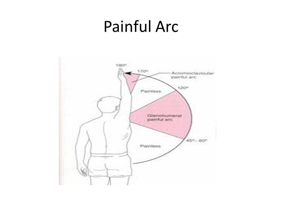 Painful Arc