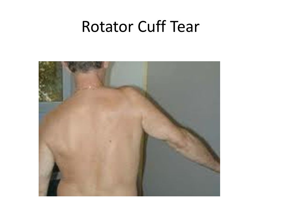 Acute rotator cuff tear Patients presenting with a traumatic history, sudden or progressive weakness Urgent U/S and referral Consider early repair 6-12/52 window of opportunity for best outcome from surgery