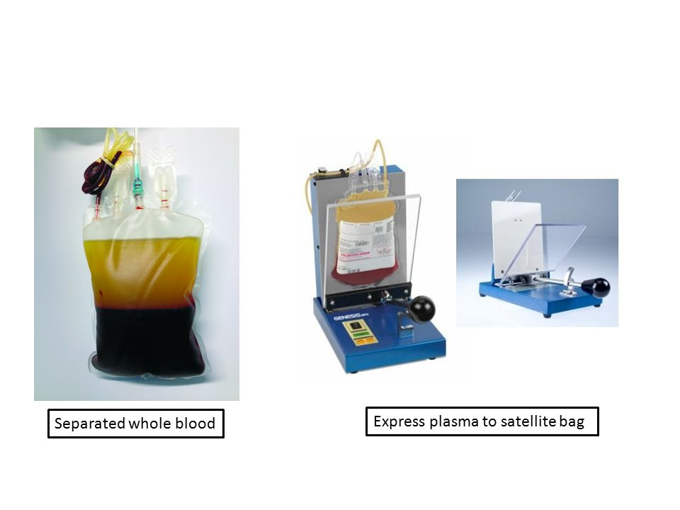 Separated whole blood Express plasma to satellite bag