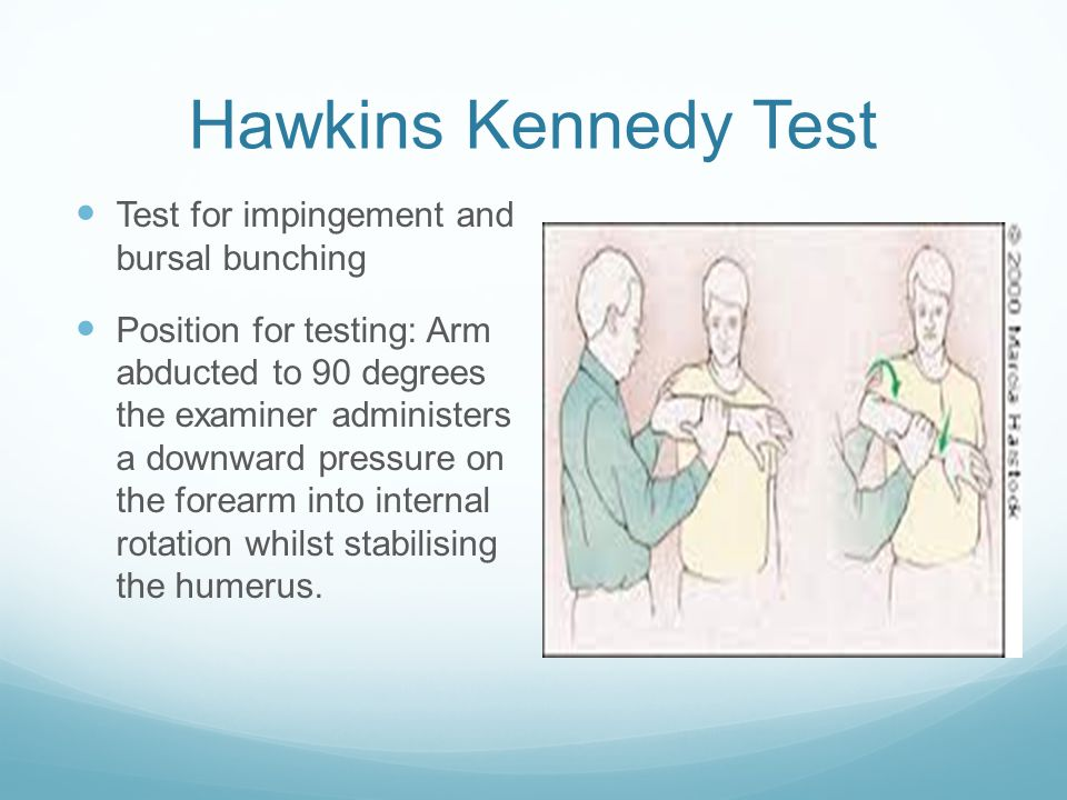 Hawkins Kennedy Test Test for impingement and bursal bunching Position for testing: Arm abducted to 90 degrees the examiner administers a downward pre