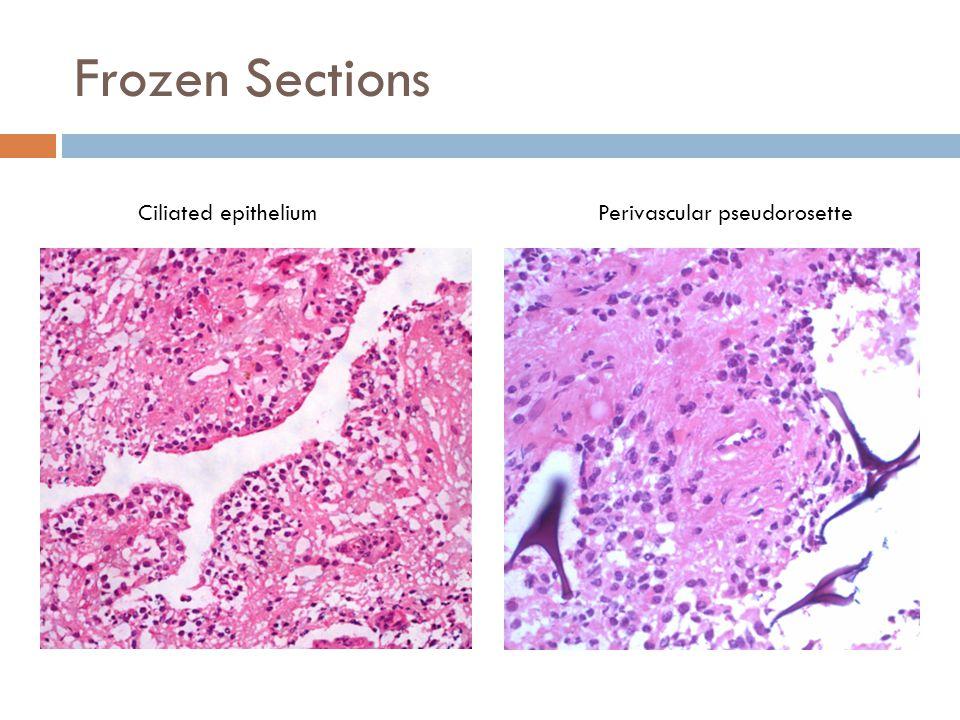 Frozen Sections Ciliated epitheliumPerivascular pseudorosette