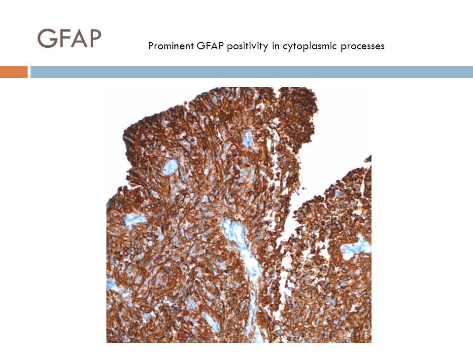 GFAP Prominent GFAP positivity in cytoplasmic processes