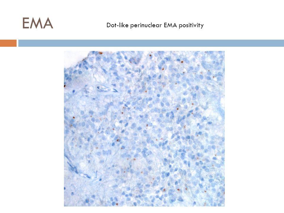 EMA Dot-like perinuclear EMA positivity