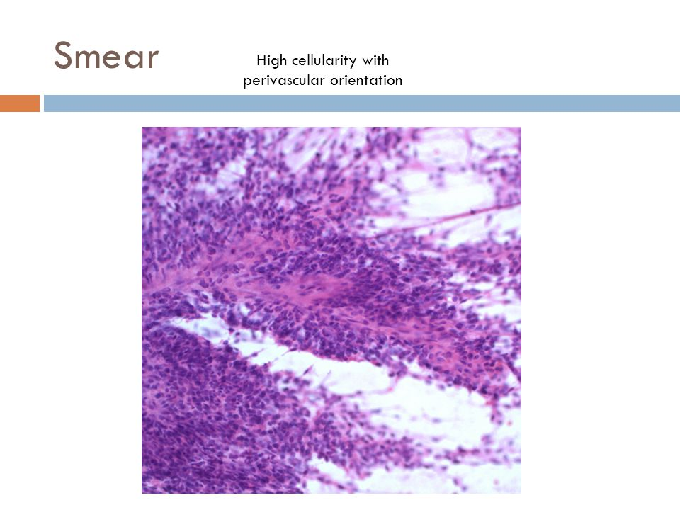 Smear High cellularity with perivascular orientation