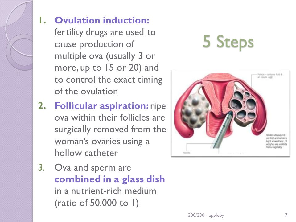 5 Steps 1.Ovulation induction: fertility drugs are used to cause production of multiple ova (usually 3 or more, up to 15 or 20) and to control the exact timing of the ovulation 2.Follicular aspiration: ripe ova within their follicles are surgically removed from the woman's ovaries using a hollow catheter 3.Ova and sperm are combined in a glass dish in a nutrient-rich medium (ratio of 50,000 to 1) 300/330 - appleby7