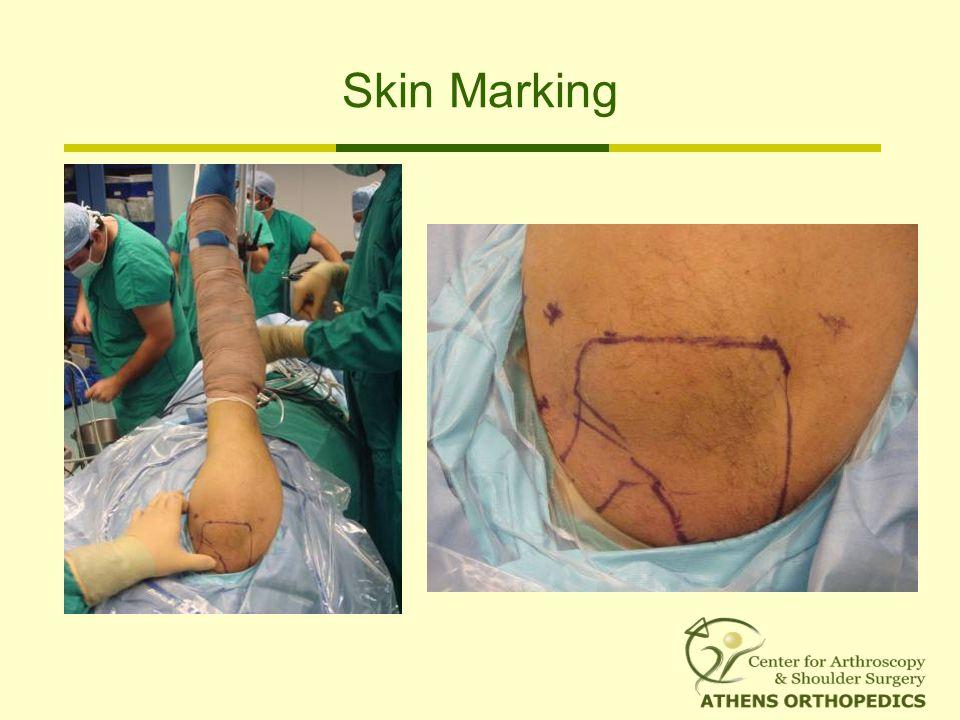 Skin Marking