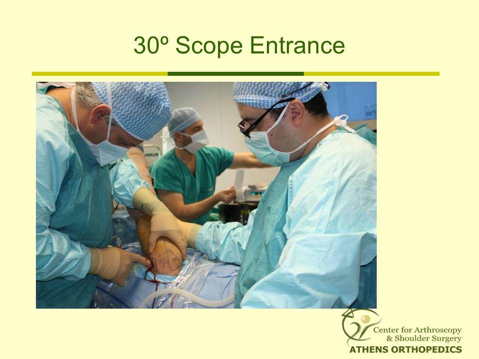 30º Scope Entrance