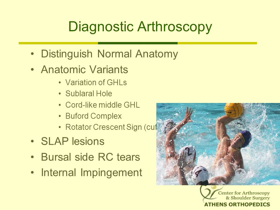 Diagnostic Arthroscopy Distinguish Normal Anatomy Anatomic Variants Variation of GHLs Sublaral Hole Cord-like middle GHL Buford Complex Rotator Crescent Sign (cuff ridge ) SLAP lesions Bursal side RC tears Internal Impingement