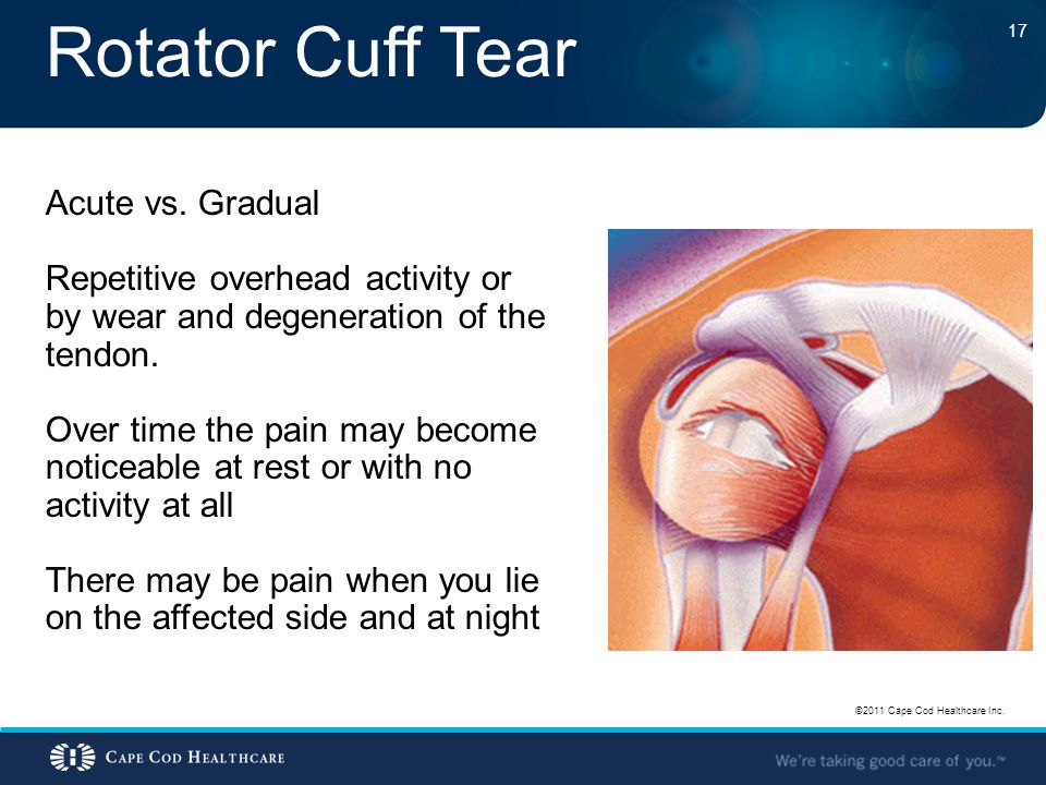 Rotator Cuff Tear ©2011 Cape Cod Healthcare Inc. 17 Acute vs. Gradual Repetitive overhead activity or by wear and degeneration of the tendon. Over tim
