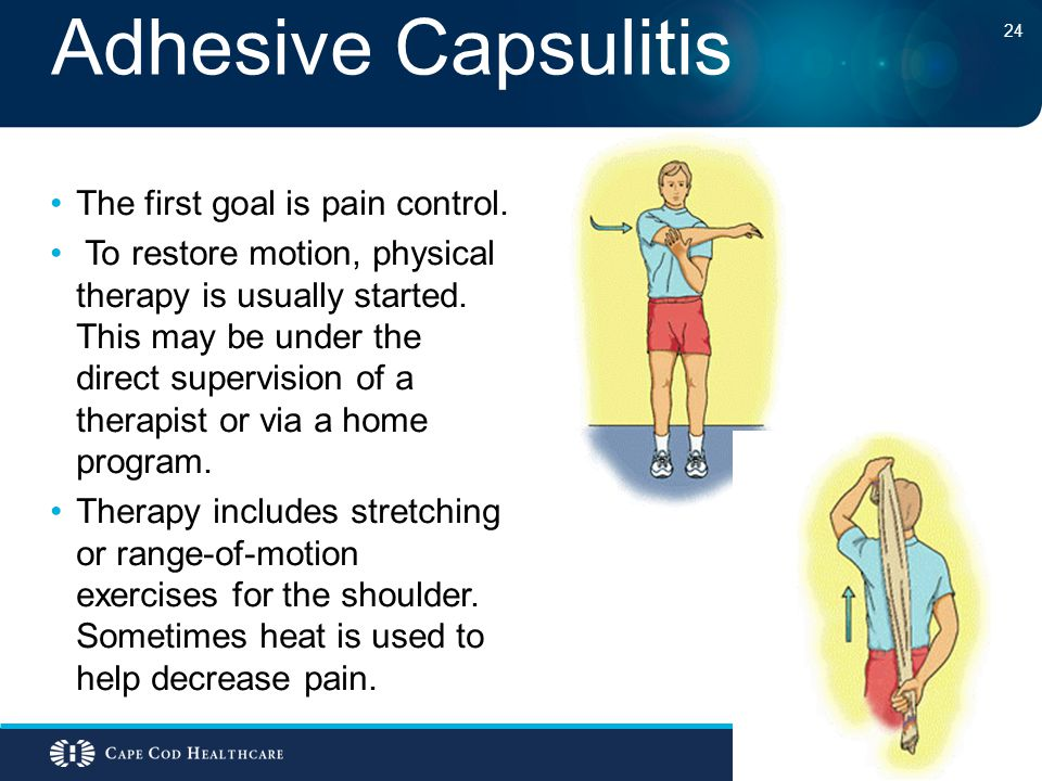 Adhesive Capsulitis The first goal is pain control. To restore motion, physical therapy is usually started. This may be under the direct supervision o