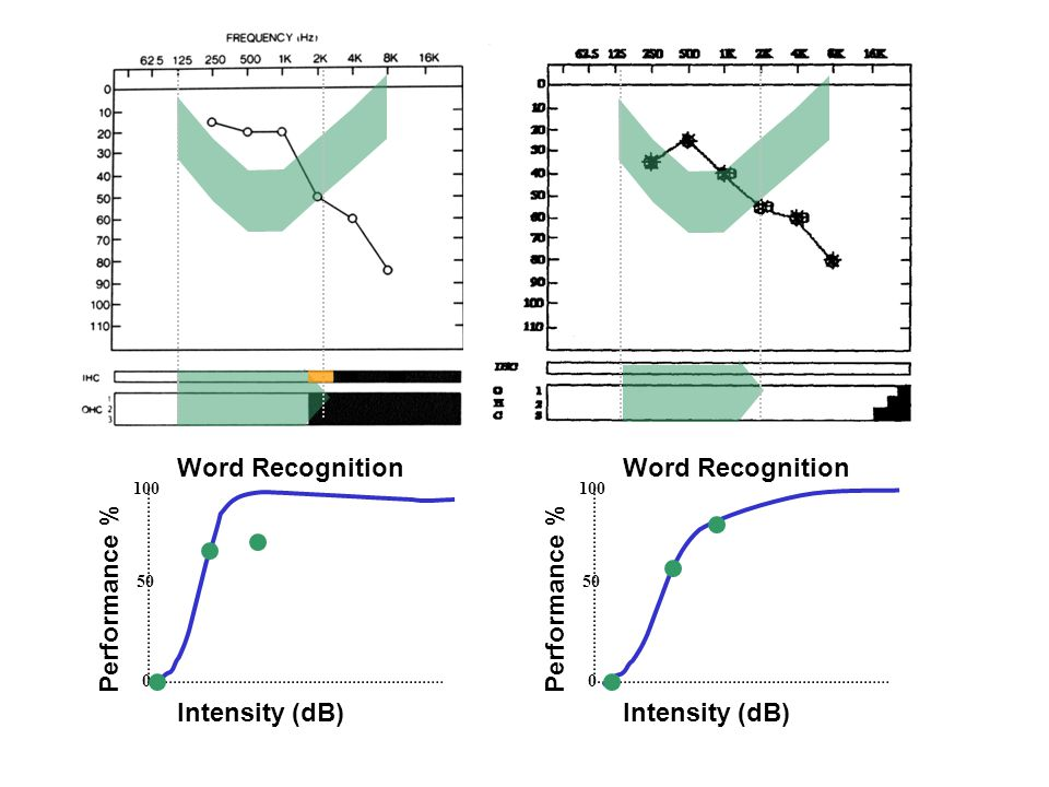 Intensity (dB) Performance % 100 50 0 Intensity (dB) Performance % 100 50 0 Word Recognition