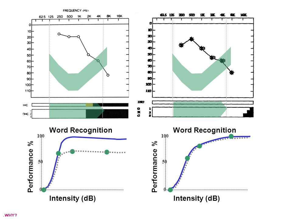 Intensity (dB) Performance % 100 50 0 Intensity (dB) Performance % 100 50 0 Word Recognition.WHY?