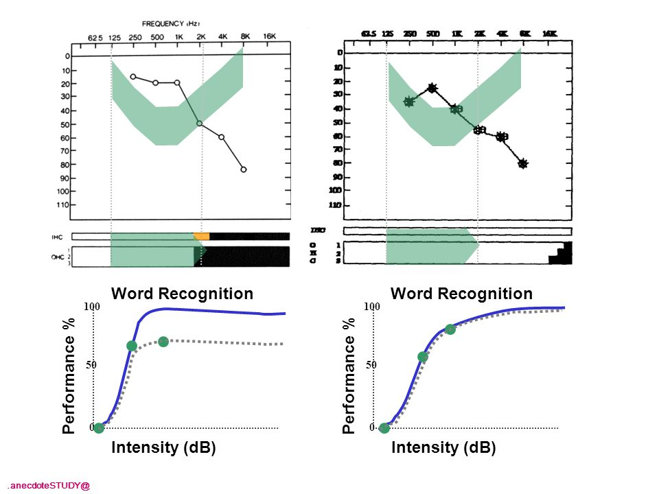 Intensity (dB) Performance % 100 50 0 Intensity (dB) Performance % 100 50 0 Word Recognition.anecdoteSTUDY@