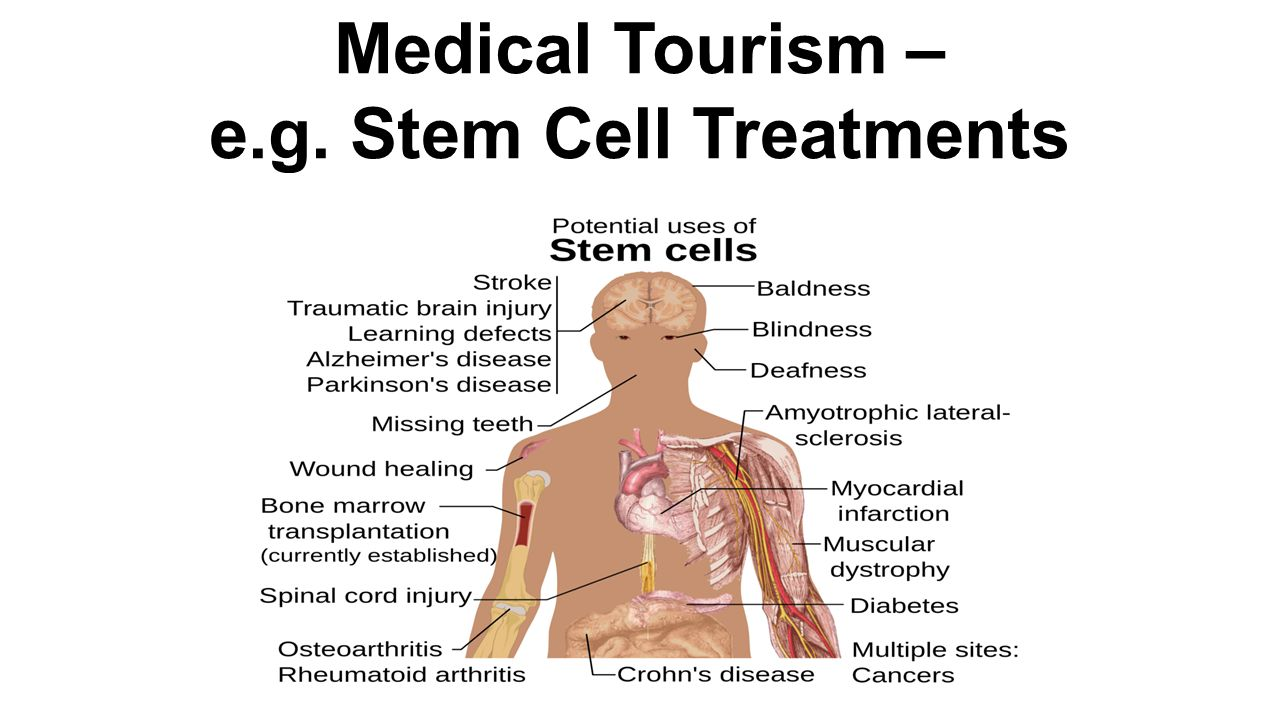 Medical Tourism – e.g. Stem Cell Treatments