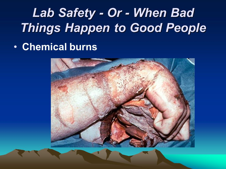 Lab Safety - Or - When Bad Things Happen to Good People Chemical burns