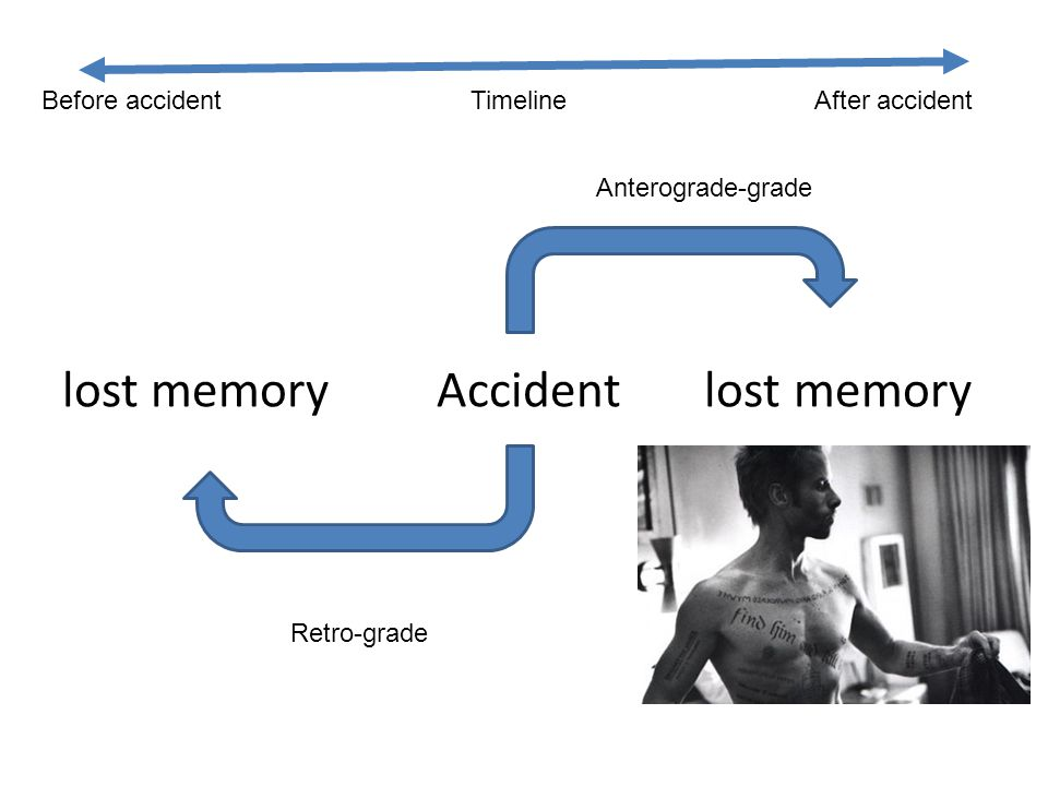 lost memory Accident lost memory Retro-grade Anterograde-grade Before accident Timeline After accident