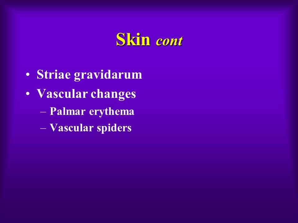 Skin cont Striae gravidarum Vascular changes –Palmar erythema –Vascular spiders