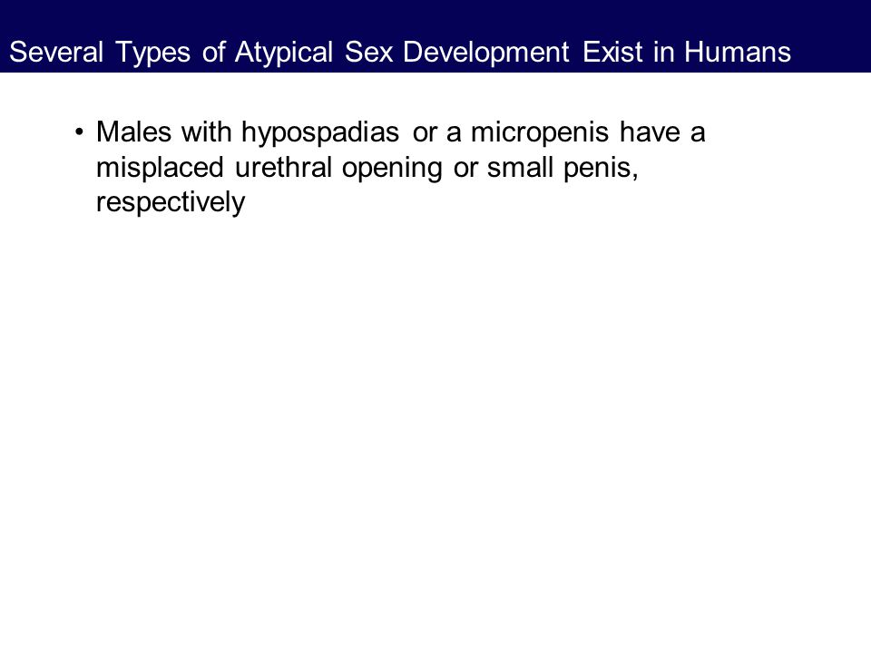 Several Types of Atypical Sex Development Exist in Humans Males with hypospadias or a micropenis have a misplaced urethral opening or small penis, res