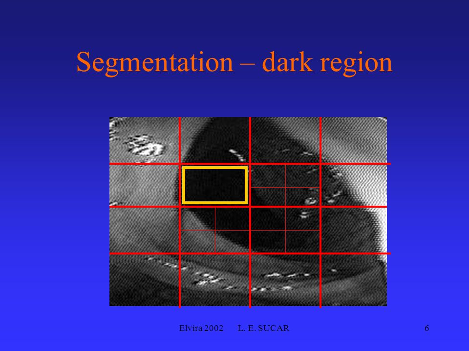 Elvira 2002 L. E. SUCAR6 Segmentation – dark region