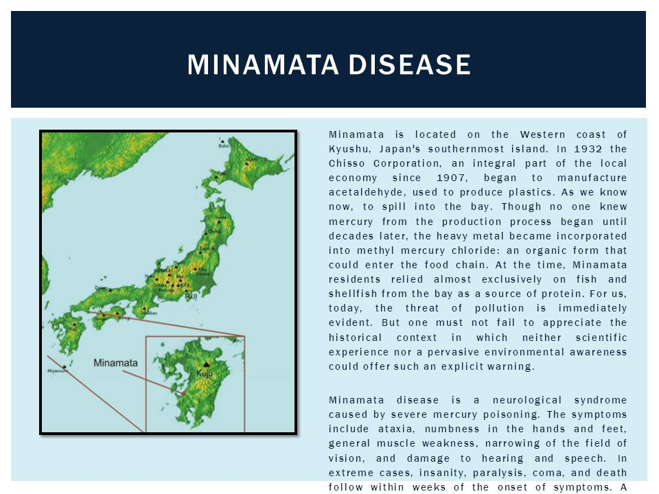 Minamata is located on the Western coast of Kyushu, Japan s southernmost island.
