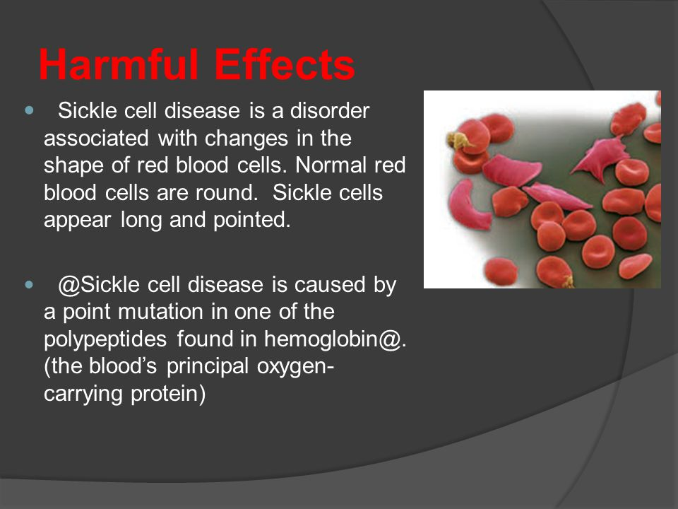 Harmful Effects Sickle cell disease is a disorder associated with changes in the shape of red blood cells.