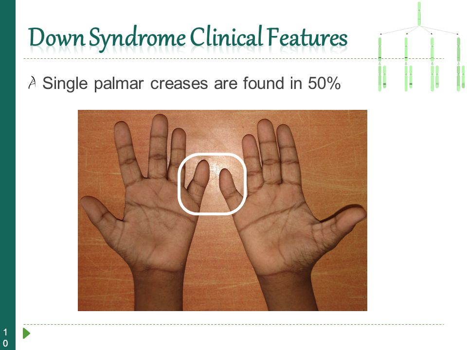 10 Single palmar creases are found in 50%