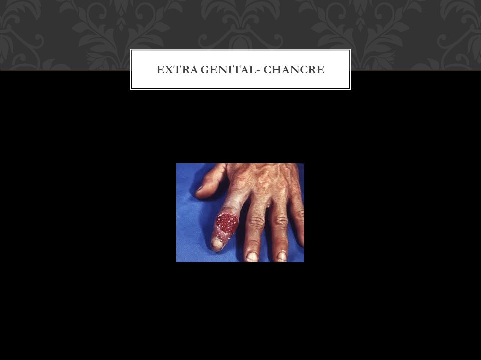 EXTRA GENITAL- CHANCRE