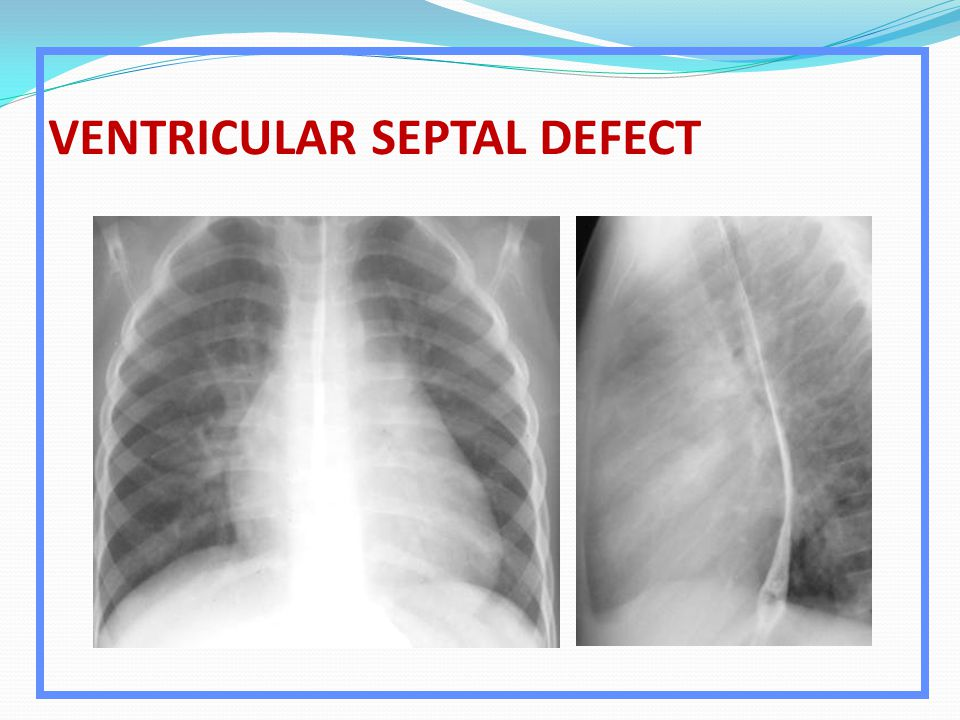 VENTRICULAR SEPTAL DEFECT