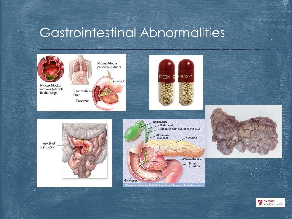 Gastrointestinal Abnormalities