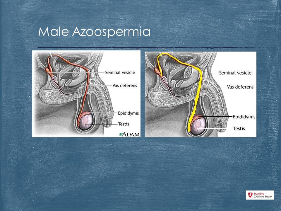 Male Azoospermia