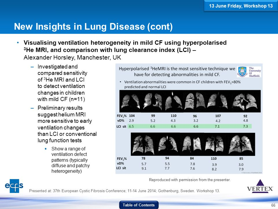 66 New Insights in Lung Disease (cont) Visualising ventilation heterogeneity in mild CF using hyperpolarised 3 He MRI, and comparison with lung cleara