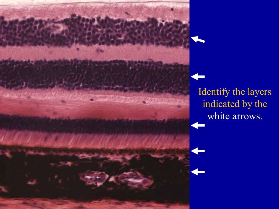 Identify the layers indicated by the white arrows.