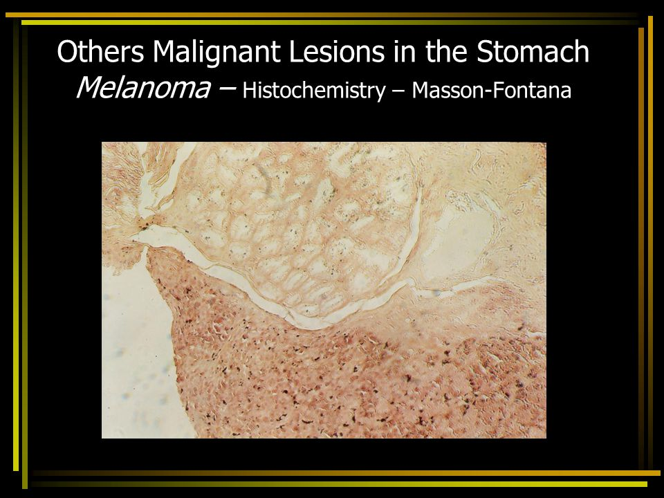 Others Malignant Lesions in the Stomach Melanoma – Histochemistry – Masson-Fontana