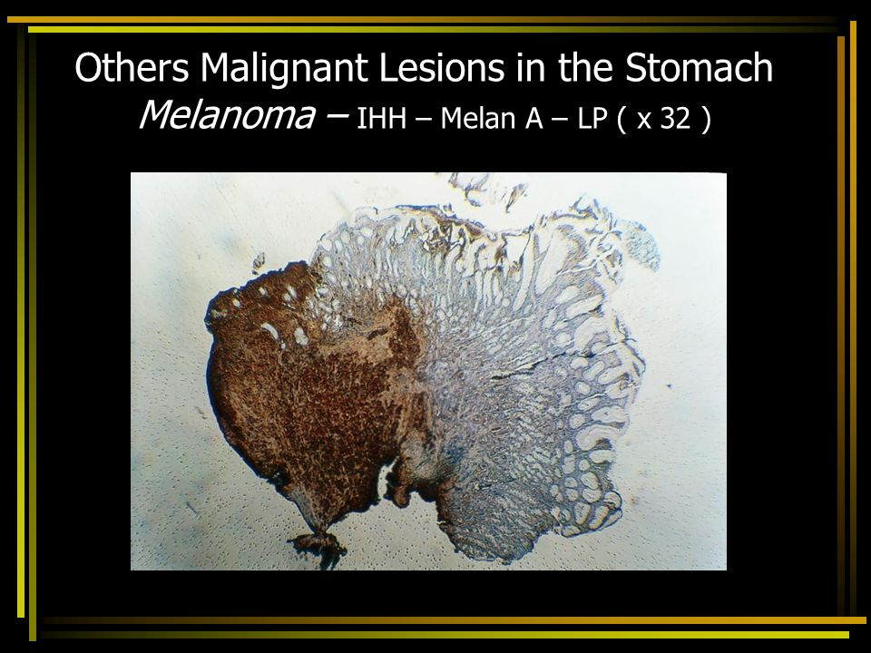 Others Malignant Lesions in the Stomach Melanoma – IHH – Melan A – LP ( x 32 )