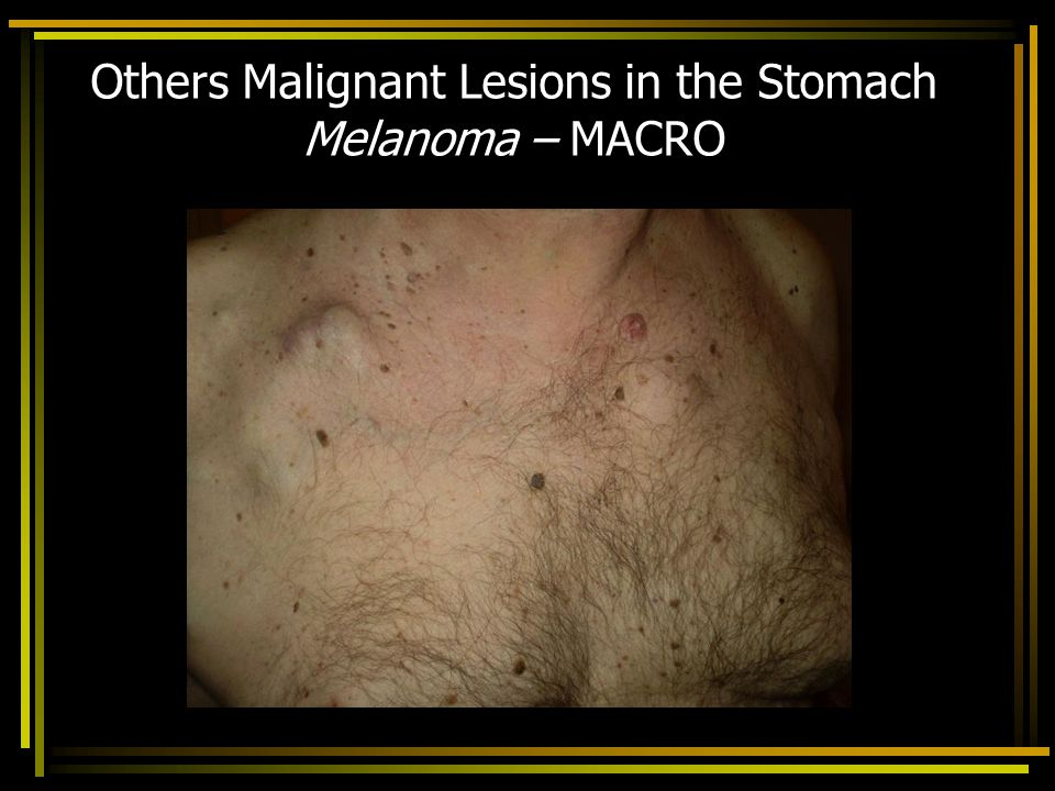 Others Malignant Lesions in the Stomach Melanoma – MACRO